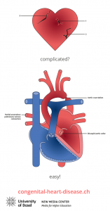 congenital-heart-disease_1